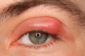 vörös szem